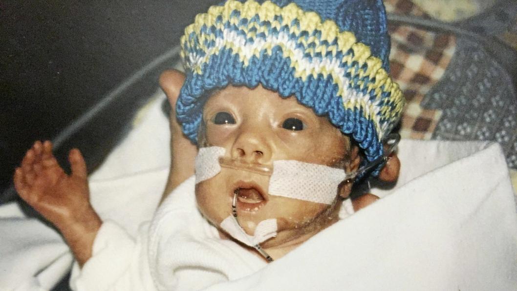 PREMATUR: Det var dramatisk da Simen Bondevik ble født tre måneder for tidlig i 2000. Lenge var det usikkert om han kom til å overleve.